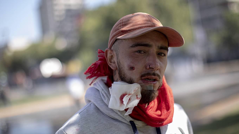 sachs315_Pablo Rojas MadariagaNurPhoto a través de Getty Images_chileprotestmanbulletface [19659PhotocarturdelaimagendelaimagendelaimagendelaimagendelaimagendelaimagendelaimagendelaimagendelaimagendelaimagendelaimagenAúnasíalgunosdeestosriesgospodríansermenosprobablesconeltiempoEstadosUnidosyChinahanalcanzadounacuerdotentativo<a href=